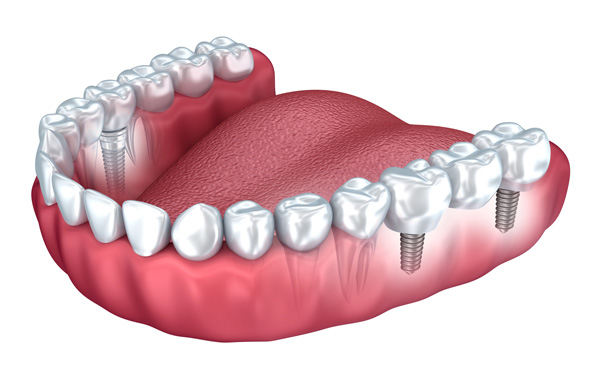 Precision Dental Implants
